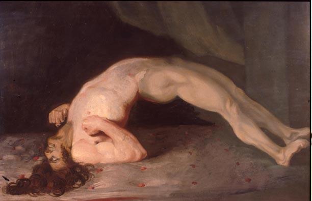 (Sir Charles Bell - 1809 tarafından yapılmış tetanoslu hasta resmi)