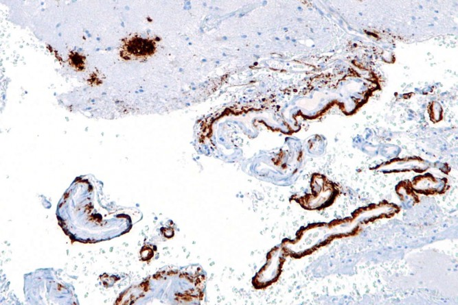beta_amyloid_plakları-alzheimer